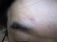 粉瘤手術の痕.jpg